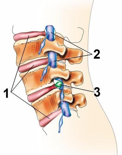 Сдавление нерва при грыже диска