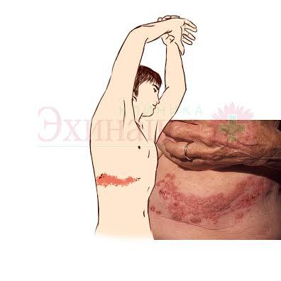 Опоясывающий лишай (Herpes zoster). Герпетическая и постгерпетическая невропатия, невралгия. Опоясывающий лишай при беременности. Лечение и диагностика. Лечение осложнений