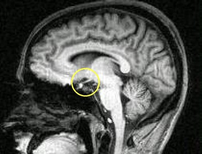 Гипоталамический синдром. Юношеский гипопитуитаризм
