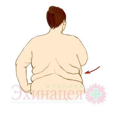 Толерантность к глюкозе. Резистентность к инсулину.  Обследование при метаболическом синдроме / инсулинорезистентности. Лечение в клинике «Эхинацея»