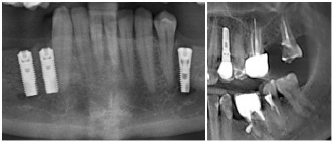Повреждение тройничного нерва при удалении зуба – Болезни полости рта