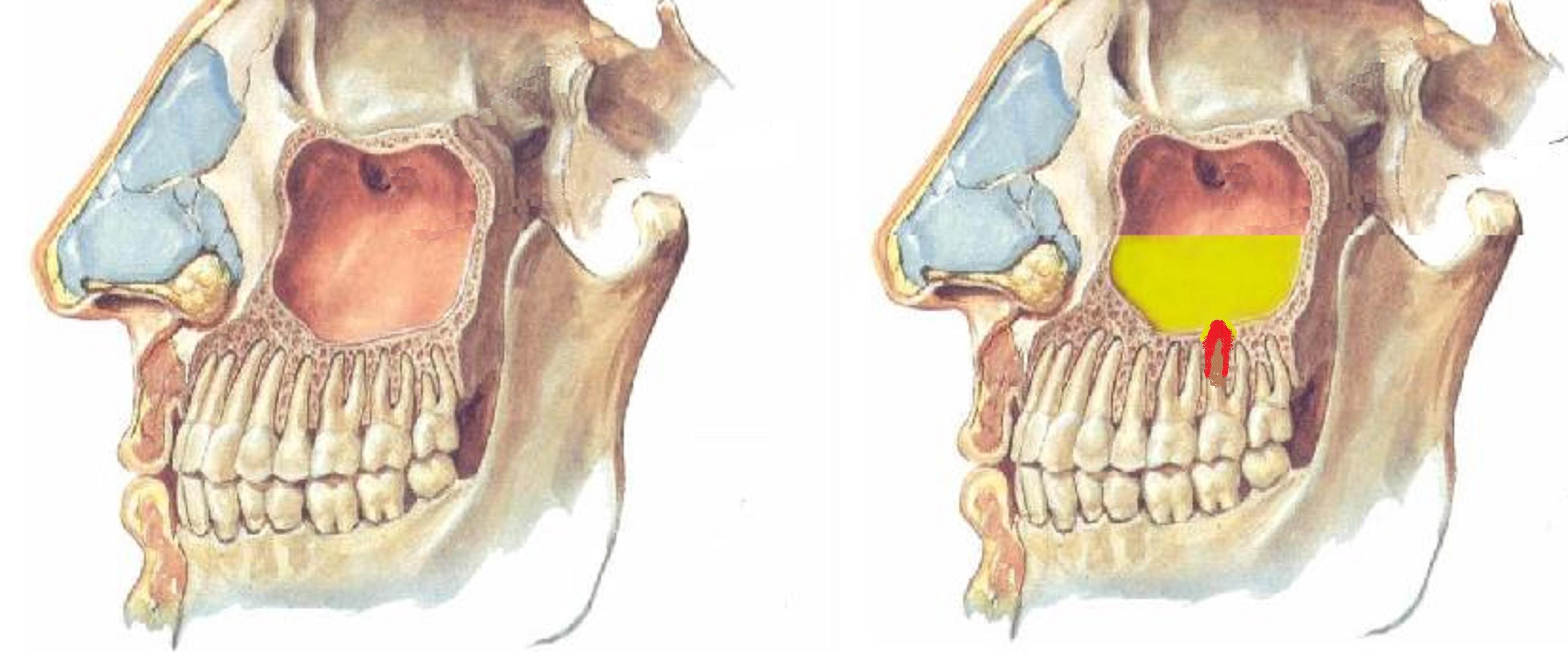 Болит челюсть после имплантации зуба — Болезни полости рта