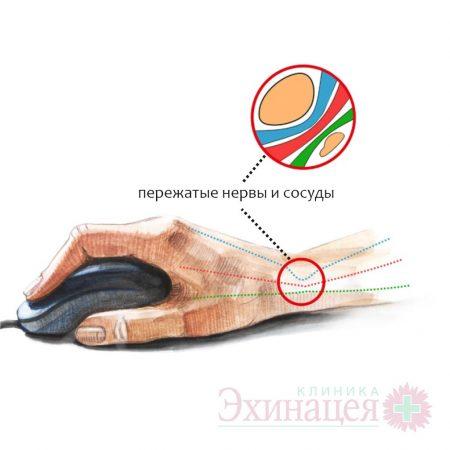 Консервативное и микрохирургическое лечение туннельных синдромов. Синдром карпального канала. Синдром кубитального (запястного) канала