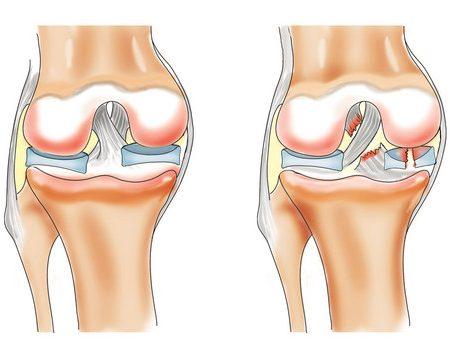 Дегенеративное повреждение внутреннего, заднего, медиального мениска. Лечение разрыва мениска коленного сустава. Лечение коленного мениска в клинике «Эхинацея». Восстановление после операции на мениске