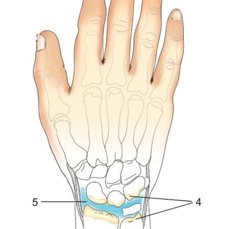 Кости и суставы. Строение суставов