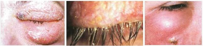 бактериальный блефарит