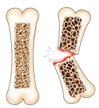 Остеопороз. Несовершенный остеогенез. Остеопороз костей и позвоночника.  Лечение остеопороза в клинике «Эхинацея»