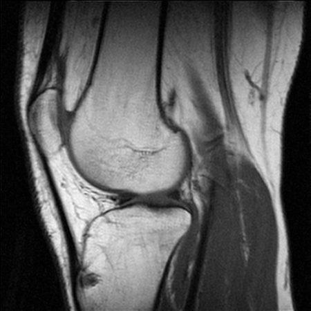 Обследование в ревматологии: МРТ, КТ, рентген, УЗИ, Эхо-КГ, ЭКГ, остеоденситометрия