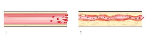 Система крови. Обследование селезенки и сосудов.